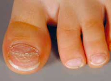 ongles pieds abimes mycose