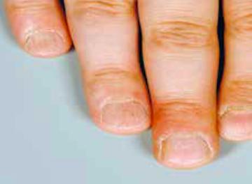 Atopitchesky la dermatite sous le genou de la photo