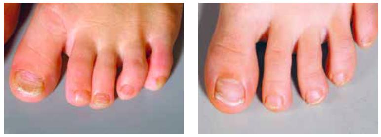 ongles des pieds épais